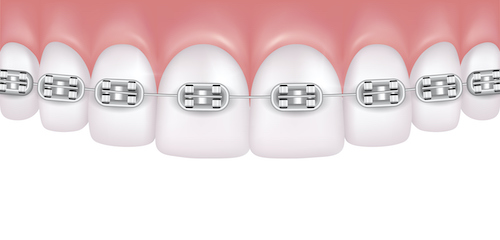 Illustration of a top row of teeth with traditional metal dental braces attached