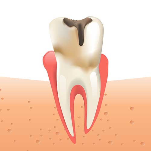 illustration of a tooth with decay, indicating a cavity is present